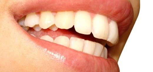 Gelbe Zähne was tun