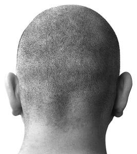 kind kopfschmerzen stirn