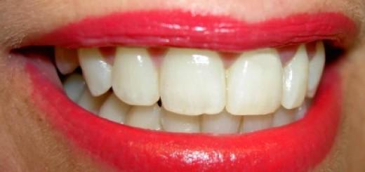 Was kann man gegen Mundgeruch machen