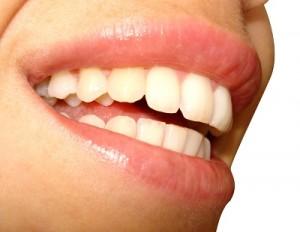 Gelbe Zähne | Verfärbungen beseitigen
